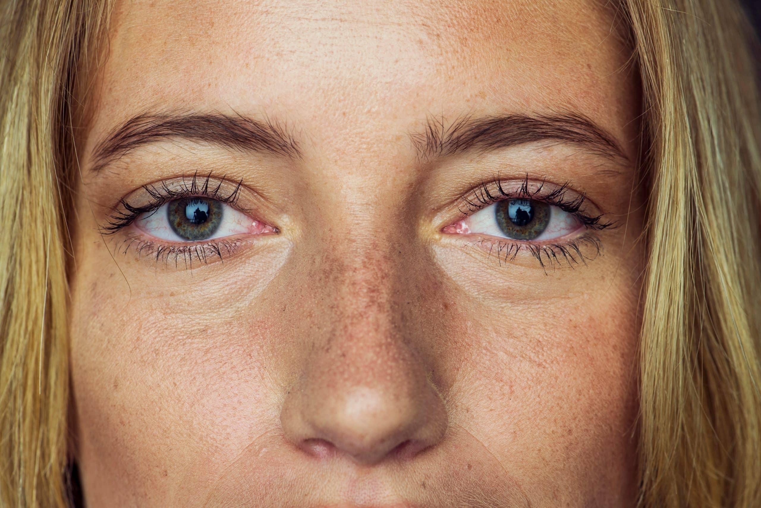 5 rzeczy, które musisz wiedzieć o przebarwieniach.